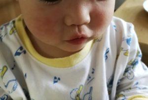 突発性発疹 顔