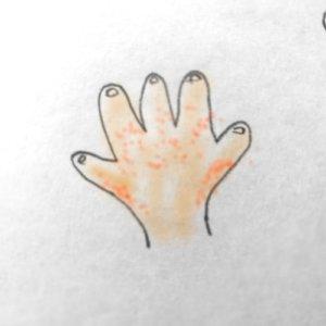 子供の手にぶつぶつができて痒そう!砂かぶれ様皮膚炎