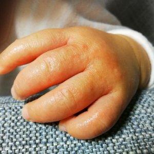 子供の手にぶつぶつでかゆい砂かぶれ様皮膚炎4