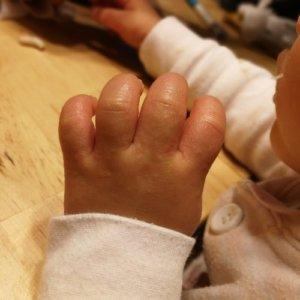 子供の手のぶつぶつ!砂かぶれ様皮膚炎手の甲