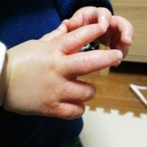 子供の手にぶつぶつで痒い!砂かぶれ様皮膚炎
