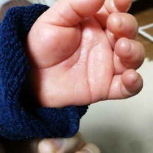 子供の手のひらにぶつぶつができてかゆい!砂かぶれ様皮膚炎
