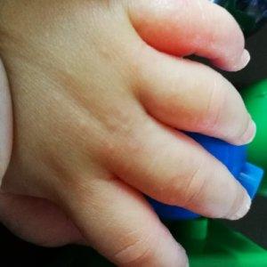砂かぶれ様皮膚炎で手がぶつぶつでかゆい