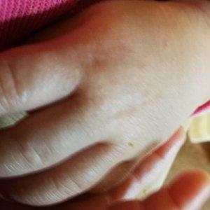 砂かぶれ様皮膚炎で手がぶつぶつ