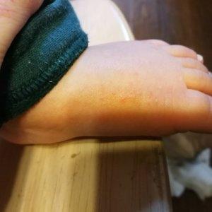 子供の足にぶつぶつが!砂かぶれ様皮膚炎