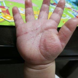 砂かぶれ様皮膚炎で割れた手